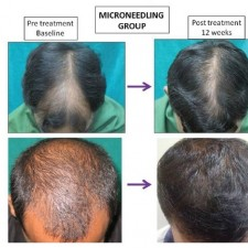 Remedy for hair loss
