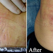 Reduce stretch mark by derma roller